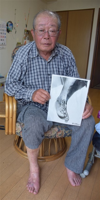 熱線で変形した右足…4歳で被爆「足よりも心の痛みがつらかった ...