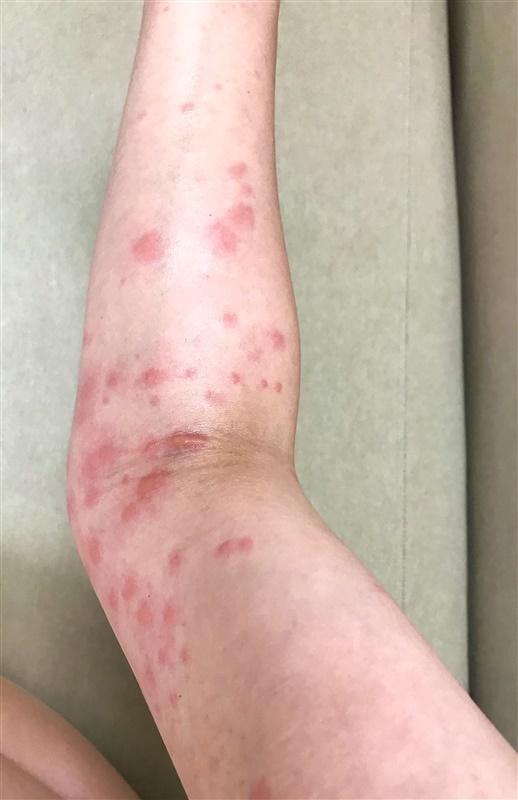 発疹 なし 赤い かゆみ