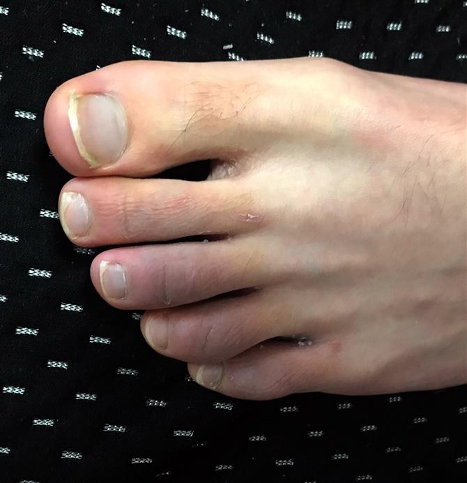 爪 の 臭い 足 親指 の