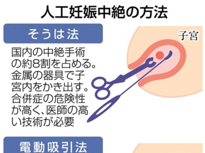 手術 やり方 中絶